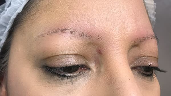 Picture of eyebrows before applying artificial eyebrows